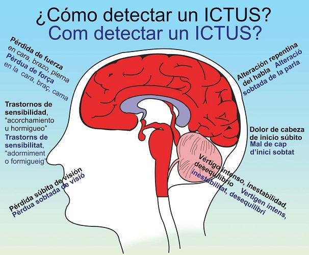 Síntomas del ictus