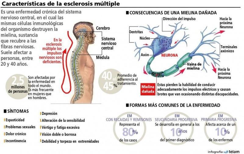 Esclerosis Múltiple, causas y posibles secuelas